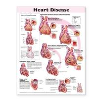 Heart Disease Anatomical Chart 2nd edition