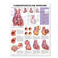 Cardiovascular Disease Anatomical Chart 2nd edition