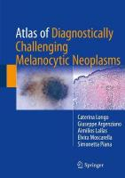 Atlas of Diagnostically Challenging Melanocytic Neoplasms 2018 1st ed. 2017